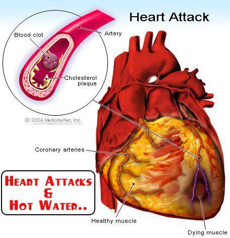 Heart Attacks & Hot Water.